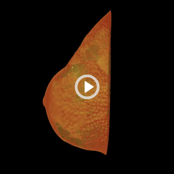 Volumerendering Brust-CT: sternförmige Läsion