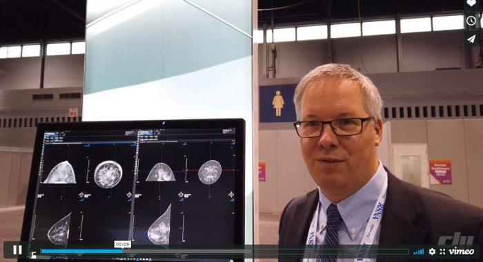 Prof. Frauenfelder über die Vorteile des Brust-CT