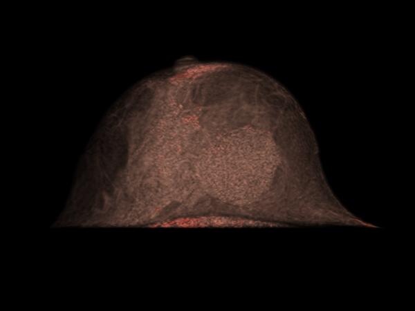 MULTIZENTRISCHER BRUSTKREBS | 3D-Volumenrendering - präkontrast