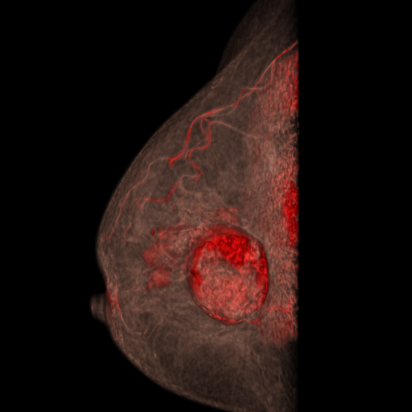 breast CT 3D volume rendering with contrast